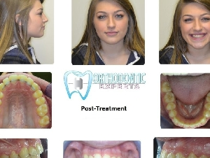 Orthodontic Experts Pilsen Chicago